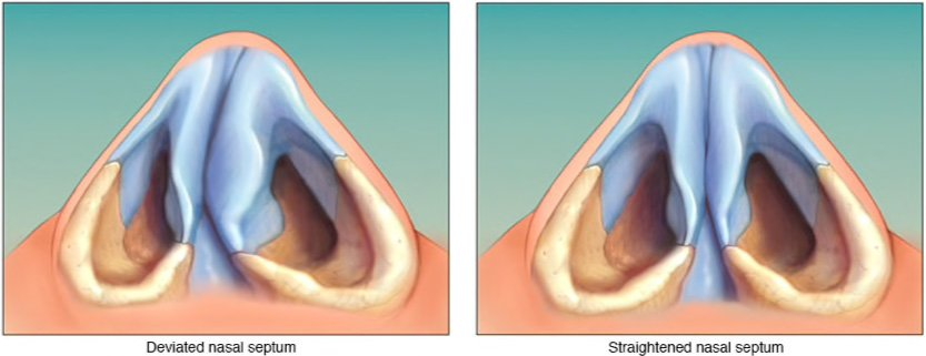 my nasal passages are swollen - 750×311